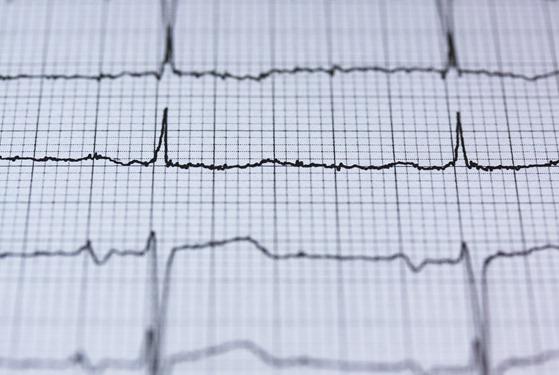 coherence cardiaque battement du coeur
